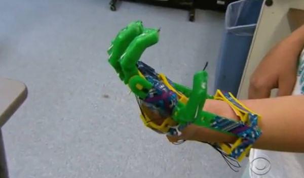1104-mod-prosthetic-hand_full_600